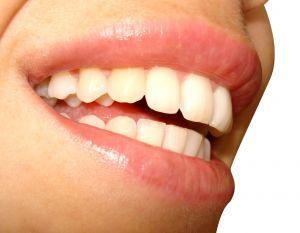 Aparat stały na zęby